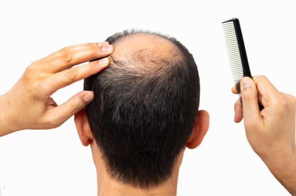 שיער דליל – דרכי טיפול